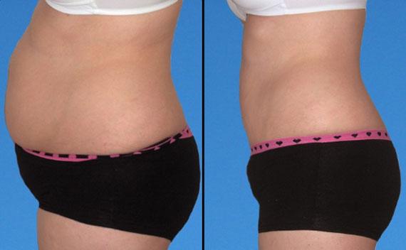 Cây nhàu giúp giảm béo bụng
